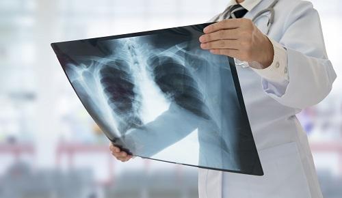 Radiology | GME MetroHealth
